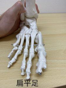 扁平足の足の形