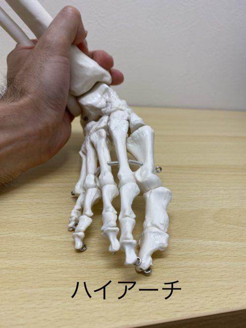 ハイアーチの足の形