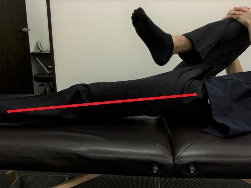 内反小趾膝が伸びない1