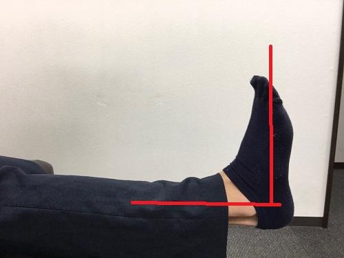 足首の柔軟性 異常