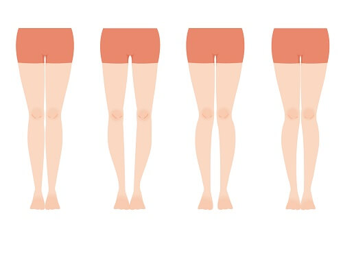 O脚を治すために絶対に必要な内股改善方法