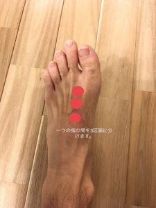 足底腱膜炎を治すためのマッサージポイント