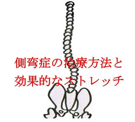 【整骨院が教える】側弯症の治療方法と効果的なストレッチと体操